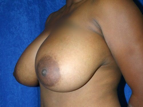 Breast Reduction #2 Before