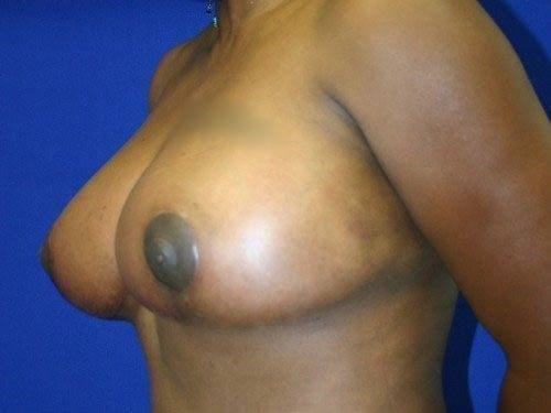 Breast Reduction #2 After