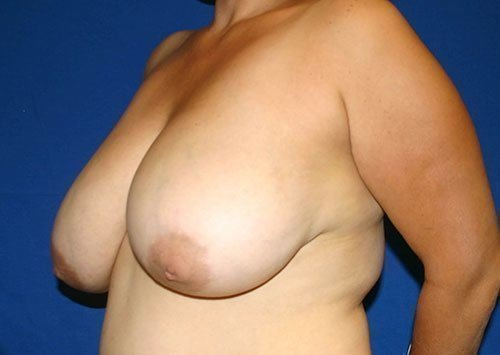 Breast Reduction #6 Before