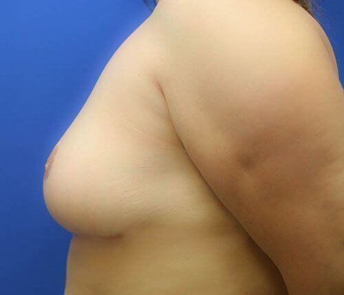 Breast Reduction #6 After
