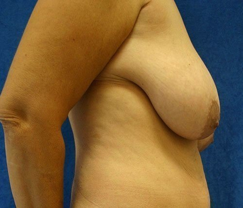 Breast Reduction #10 Before