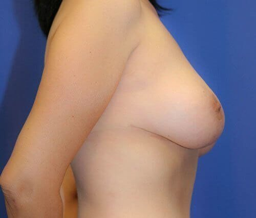 Breast Reduction #10 After