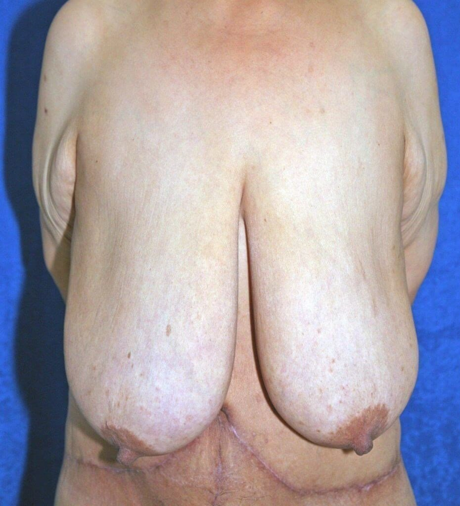 Breast Reduction #11 Before