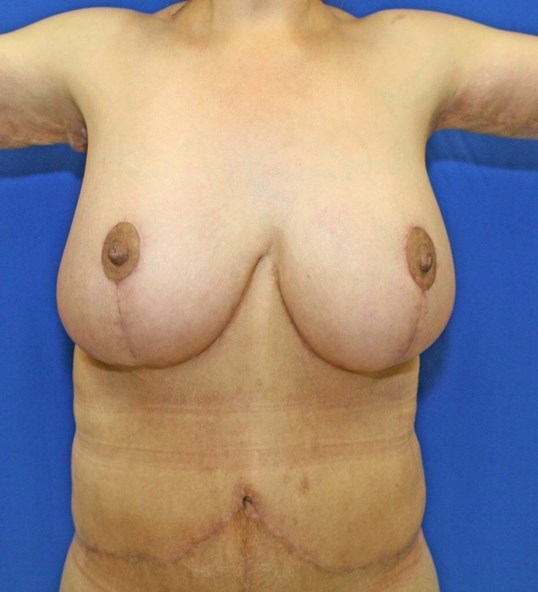 Breast Reduction #11 After