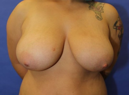 Breast Reduction #12 Before