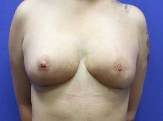 Breast Reduction #12 After