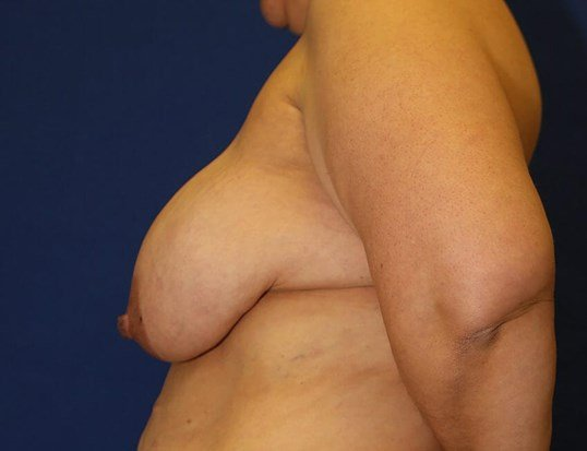 Breast Reduction #16 Before