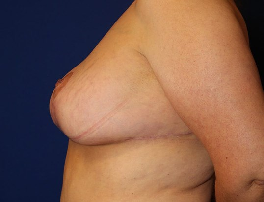 Breast Reduction #16 After