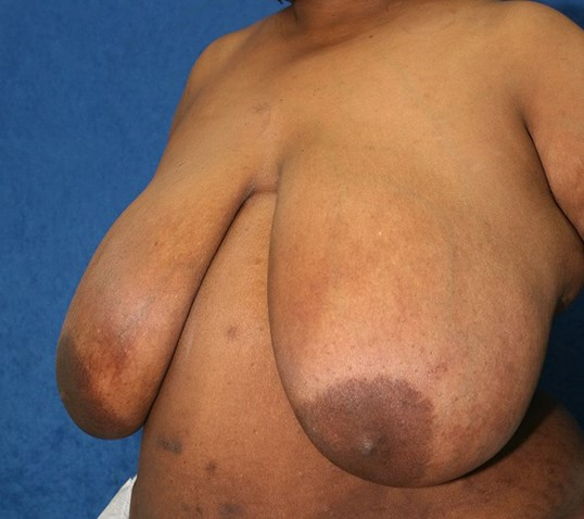 Breast Reduction #18 Before