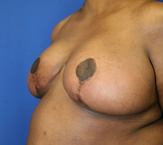 Breast Reduction #18 After