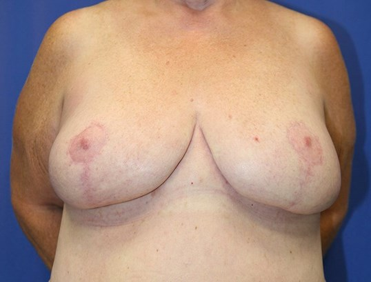 Breast Reduction #19 After