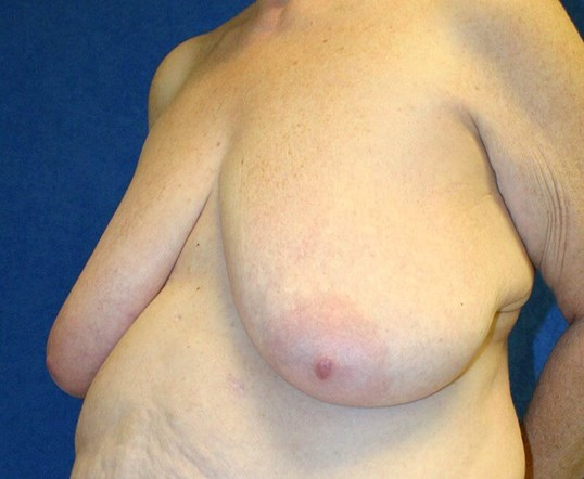 Breast Reduction #19 Before