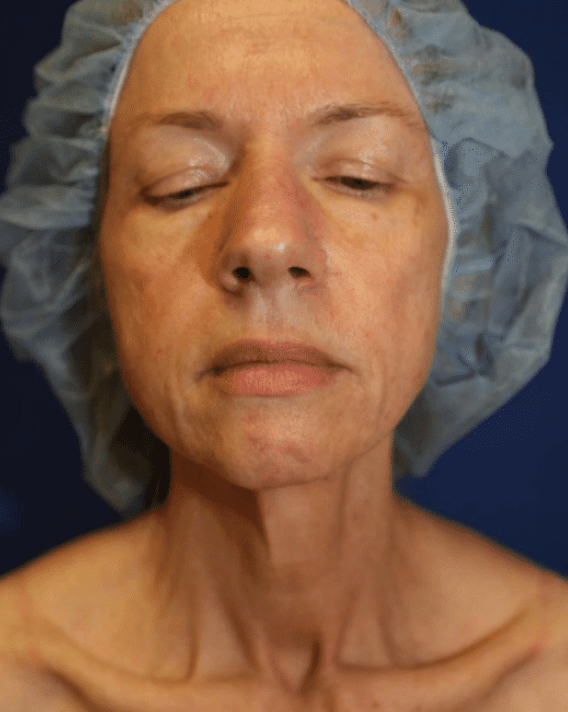 Facelift and Neck Lift Before