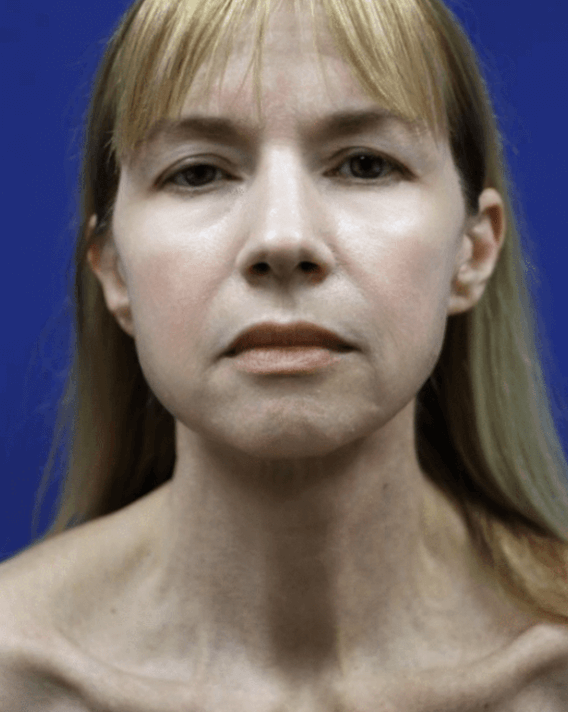 Facelift and Neck Lift After
