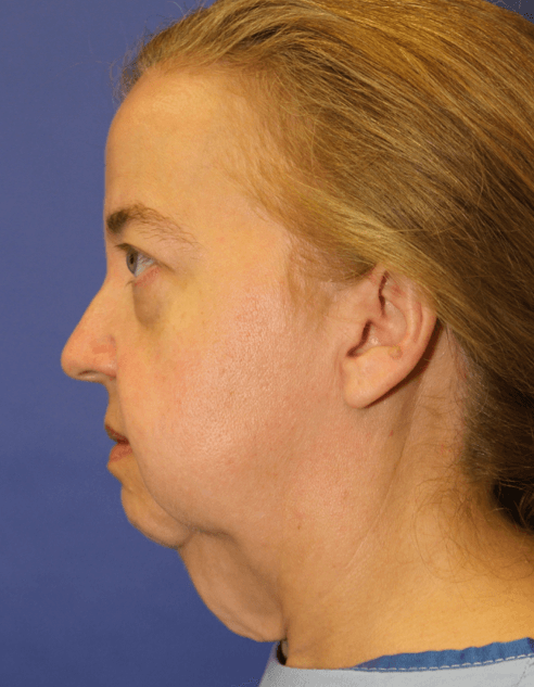 Facelift #12 Before