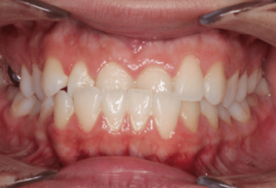 Class III Underbite Correction Before
