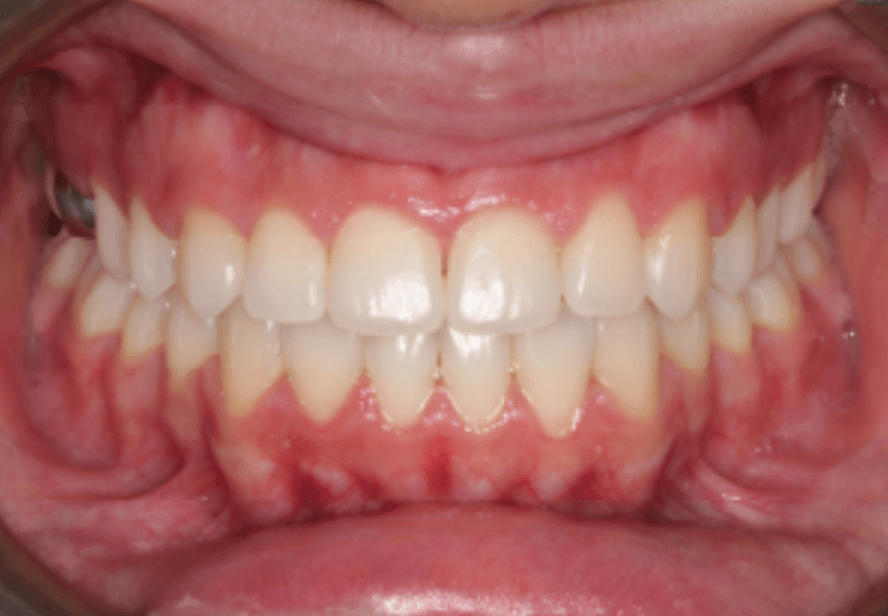Class III Underbite Correction After