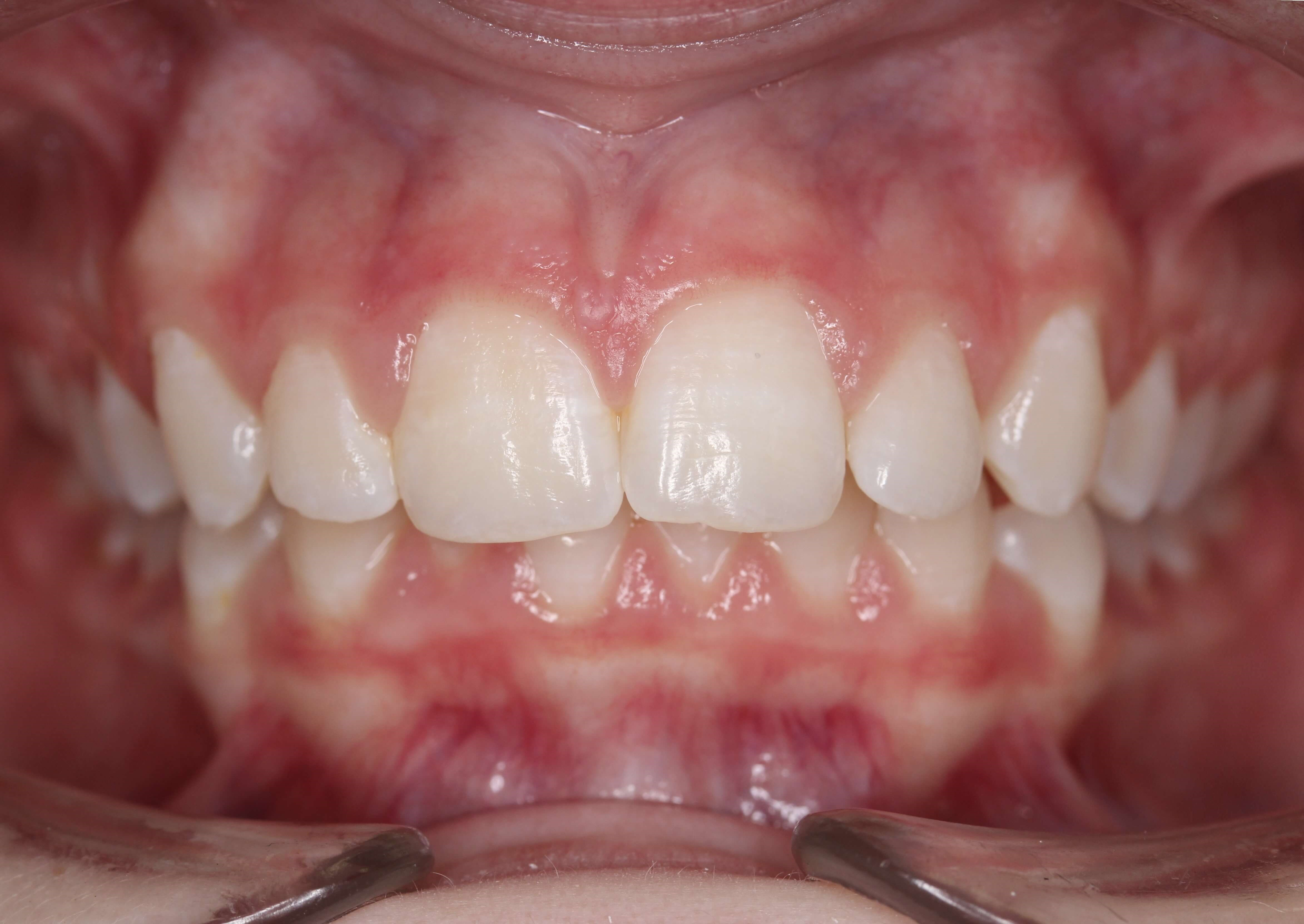 Class Ii Deep Impinging Bite Correction Orthodontics