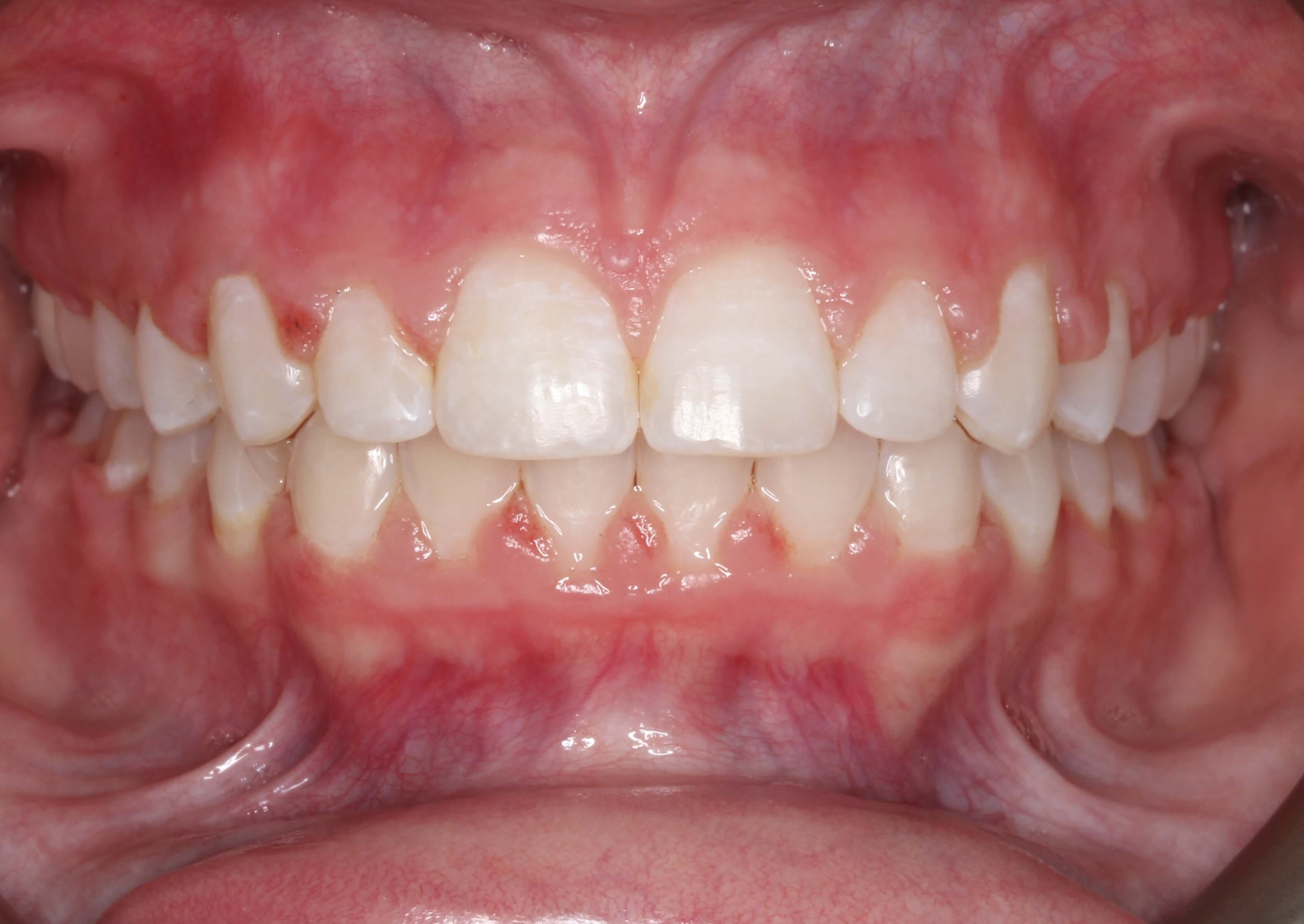 Deep Overbite Correction With Braces And Elastics