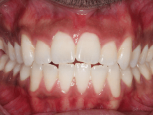Invisalign Bite Correction Before