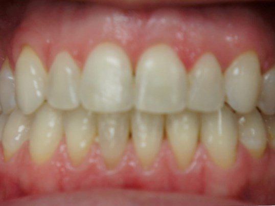Invisalign Bite Correction After