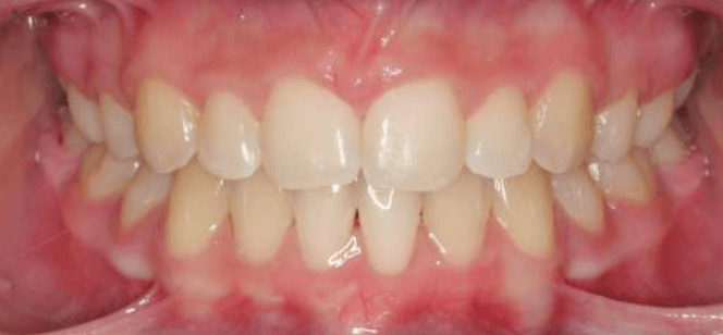 Correcting High Canines After