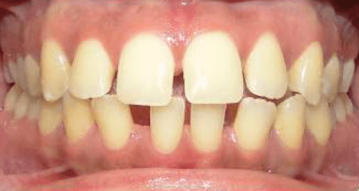 Accelerated Invisalign Before