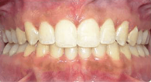 Accelerated Invisalign After