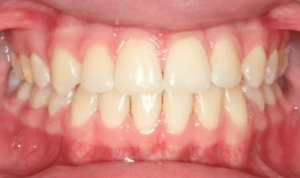Impacted Canine and Crossbite After