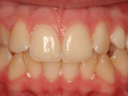 Impacted Canine and Crossbite Before