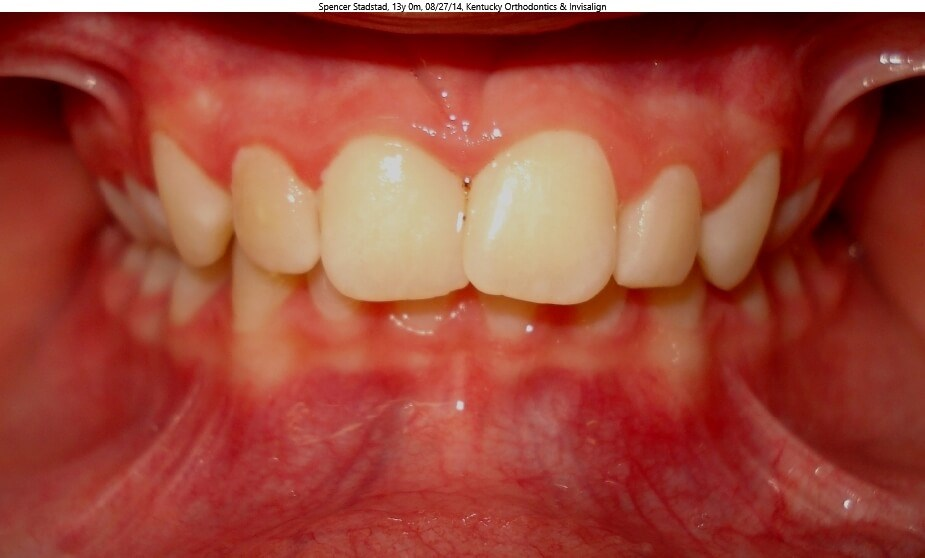 Herbst Overbite Correction Before