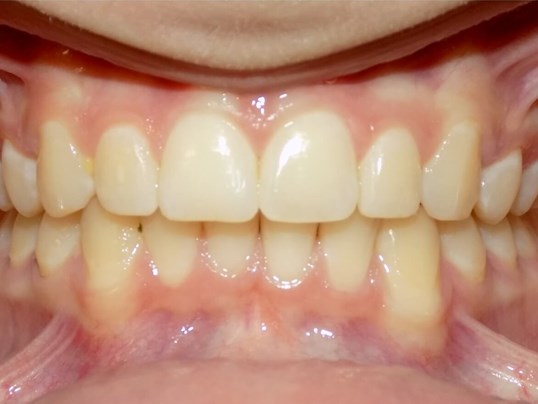 Herbst Overbite Correction After
