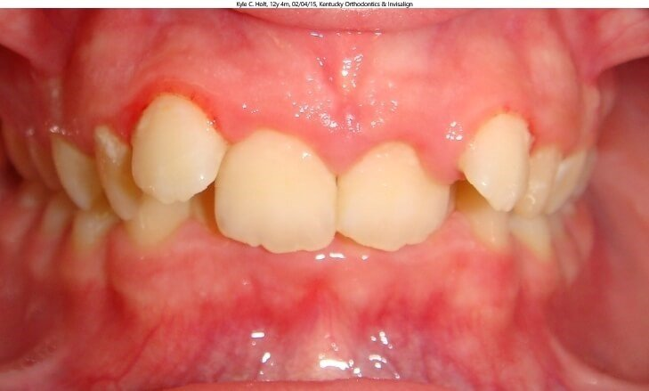 Invisalign Teen & Herbst Before