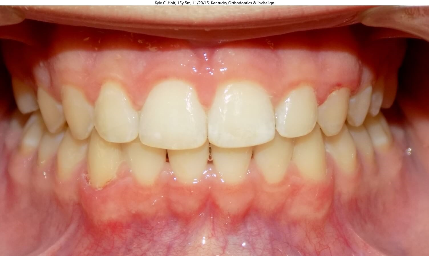 Invisalign Teen & Herbst After
