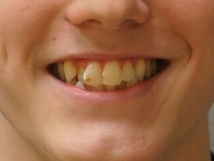Invisalign Teen Before