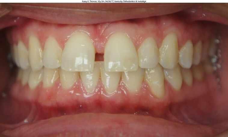 Invisalign Space Closure Before