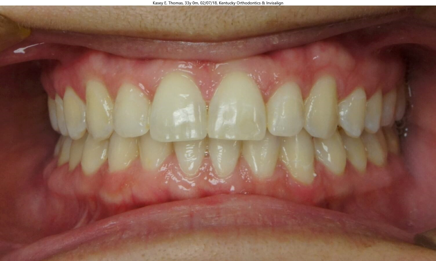 Invisalign Space Closure After