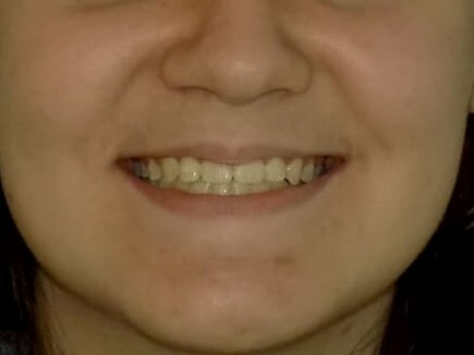 Underbite Correction After
