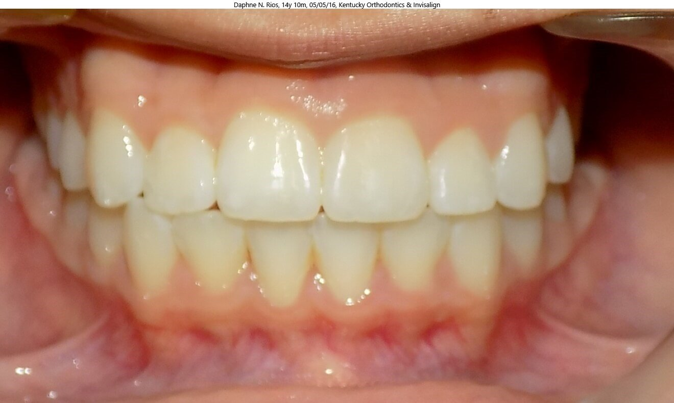 Crossbite Correction After