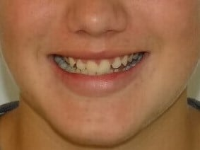 Herbst and Clear Braces Before