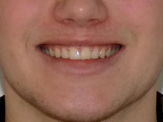 Herbst and Clear Braces After