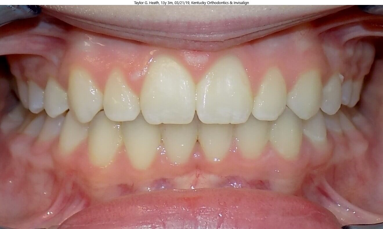 Overbite Correction After