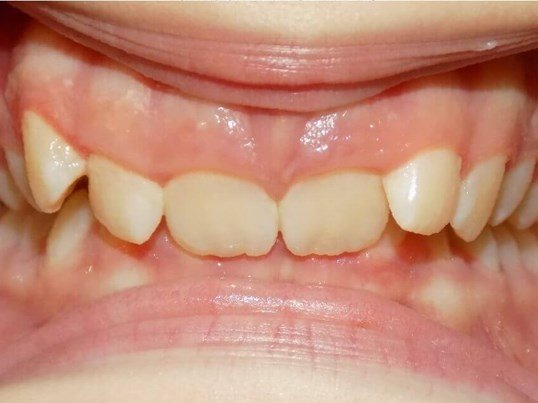 Invisalign Overbite Correction Before