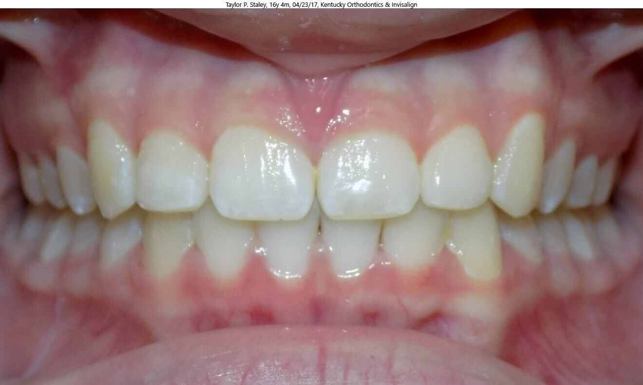 Invisalign Overbite Correction After