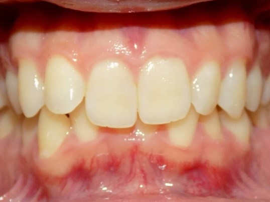 Invisalign Class II Correction Before