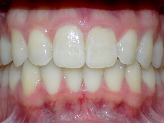 Invisalign Class II Correction After
