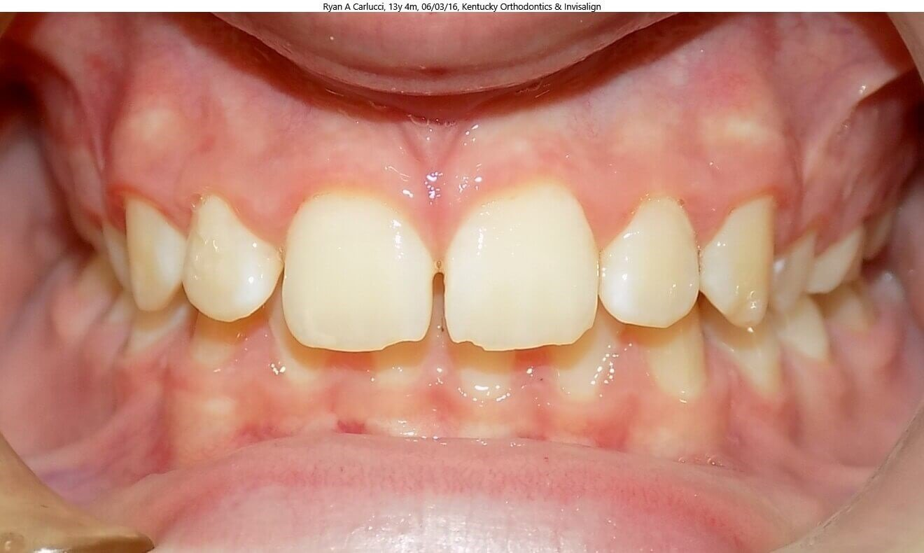 Invisalign Teen & Overbite Before