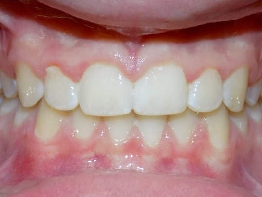Invisalign Teen & Overbite After