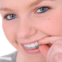 ClearCorrect Aligners*