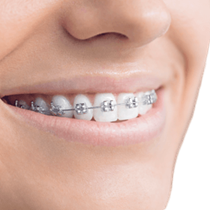 Traditional Metal Braces*